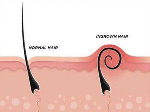 Bahaya Ingrown Hair